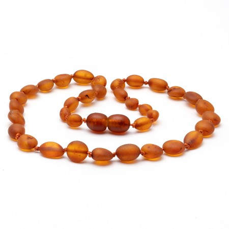 """10"""" Honey Raw Baltic Amber Necklace"""